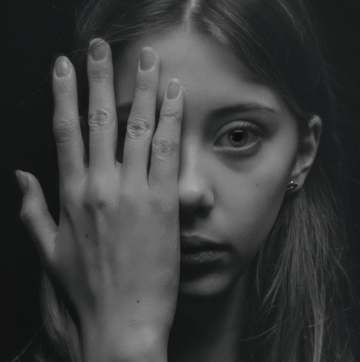 Young woman covering right eye with hands; solemn look on her face.